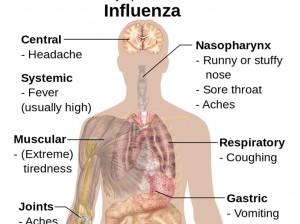 symptoms of influenza