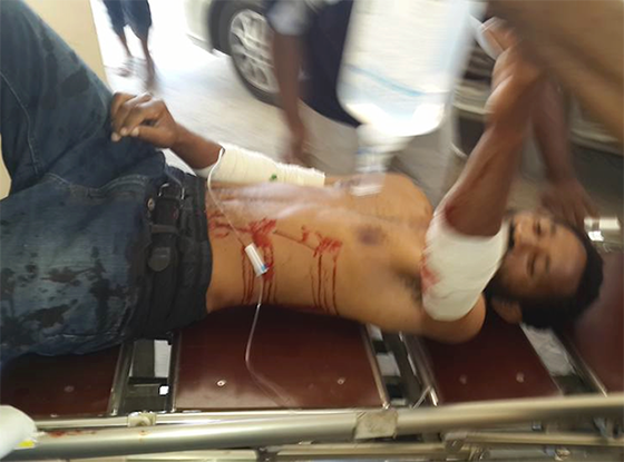 apr-wounded-student-at-PNG-A-E-560wide